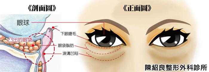 眼袋手術價格